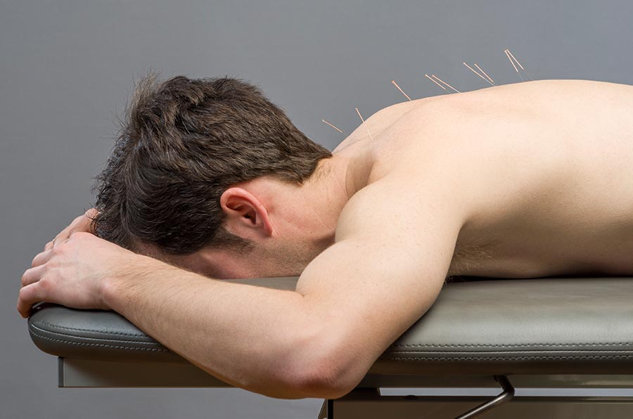 Dynamic Stability Physiotherapy Dry Needling