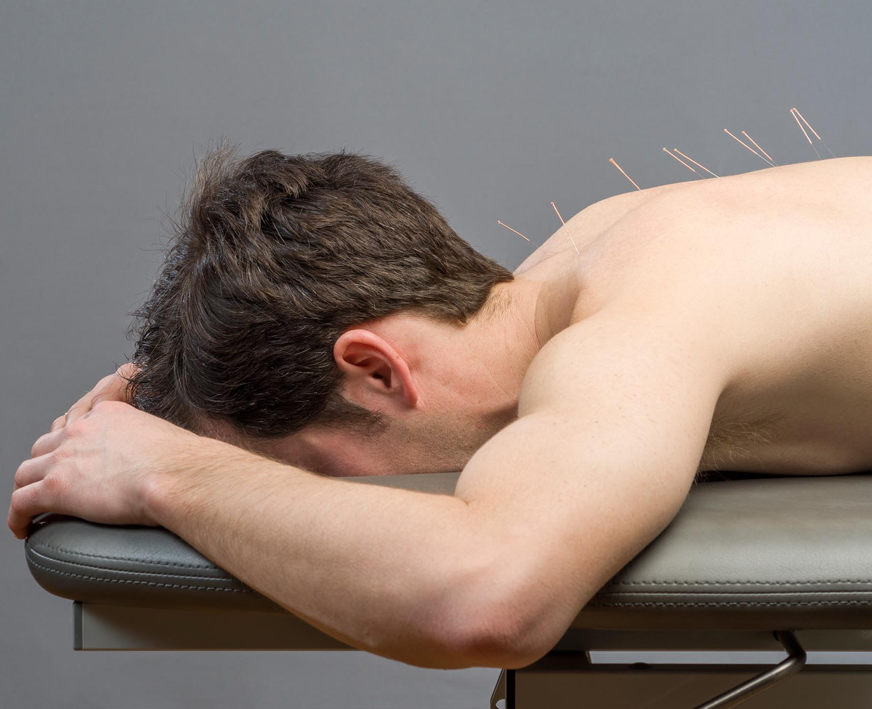 Dynamic Stability Myotherapy dry needling